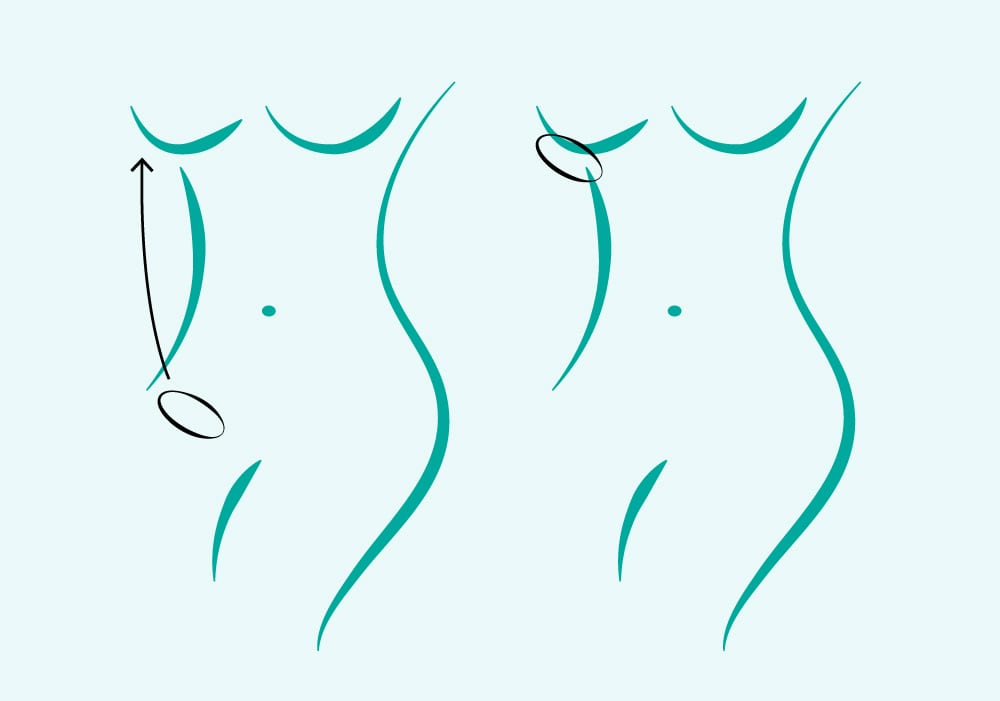 Diagram of Female Torso In Blue Showing Green Circle On Leg With Arrow To Breast