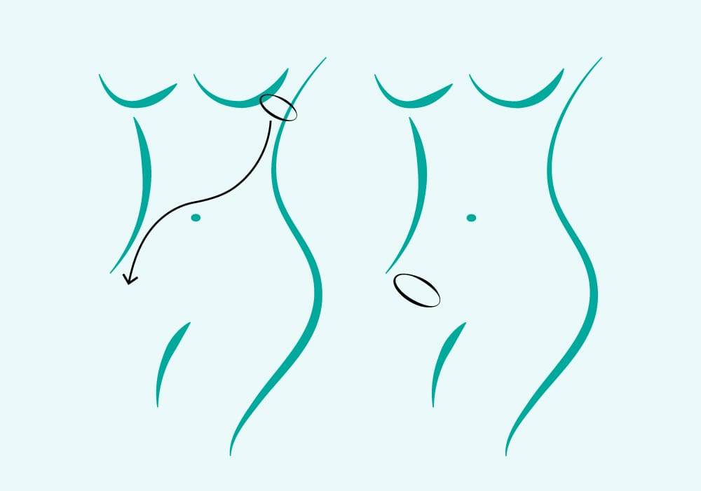 Diagram of Female Torso In Blue Showing Green Arrow Pointing From Armpit to Leg