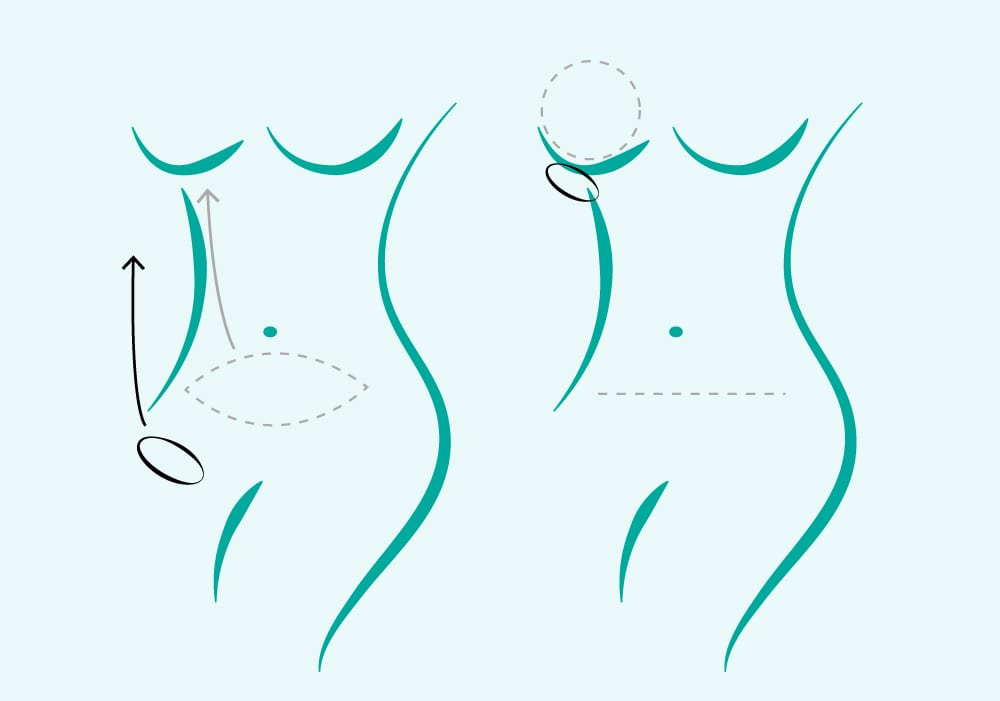 Diagram of Female Torso Showing Pink Cut Line Along Belly