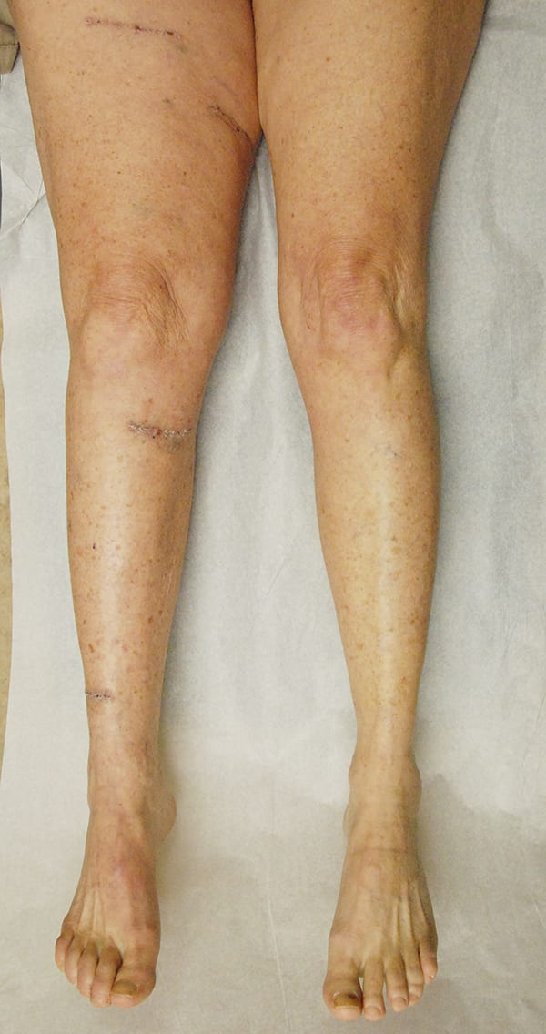 Aerial View of Patient Legs 3 Months After LVA
