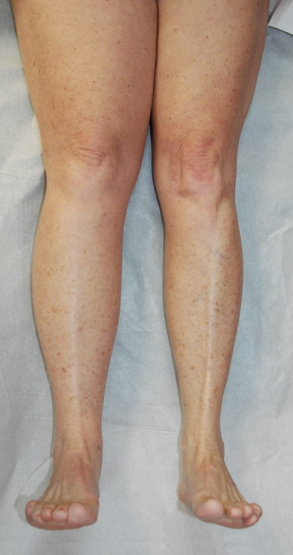 Lymphaticovenous Anastomosis Lymphedema Lipedema Center