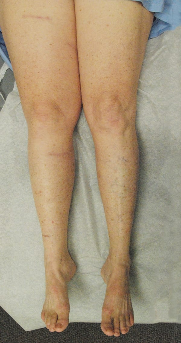 Aerial View of Patient's Legs 2 1/2 Years After LVA